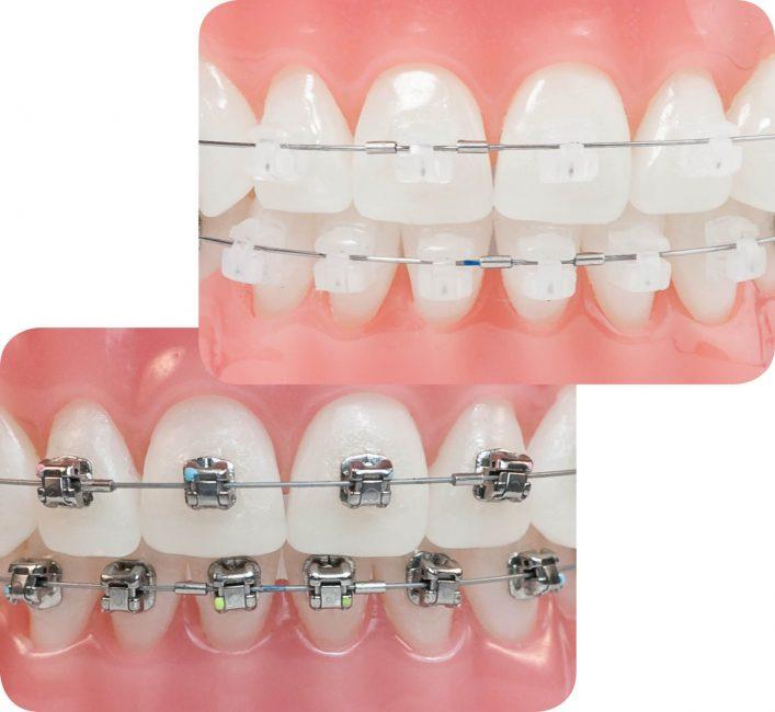 Niềng răng là phương pháp chỉnh nha giúp điều trị tình trạng hô một cách hiệu quả nhất