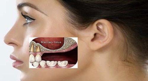 Bị tiêu xương có trồng răng Implant được không?
