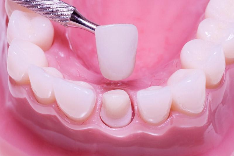 Phương pháp này có thể giúp che lấp khuyết điểm thưa răng, mang lại cho bạn hàm răng đều đẹp, tự nhiên.