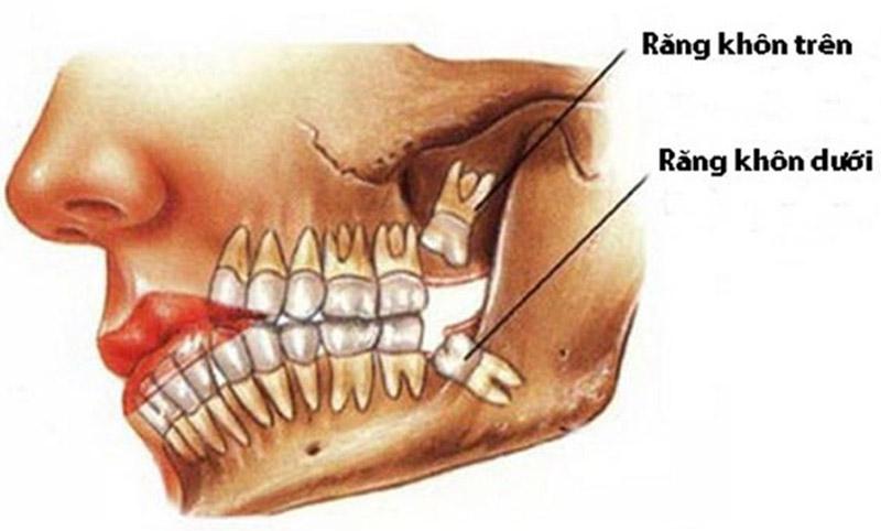 Người bình thường có bao nhiêu chiếc răng khôn?