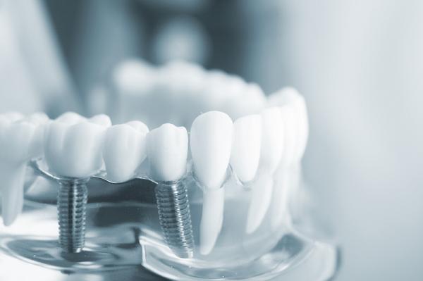 Cách chăm sóc răng sau khi trồng implant