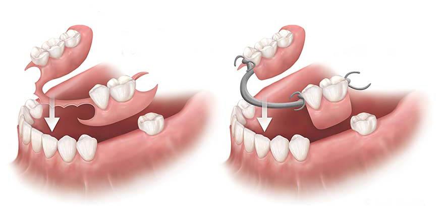 Cách vệ sinh răng giả tháo lắp đơn giản và hiệu quả