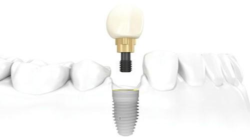 Cấy ghép Implant có gây ra biến chứng gì không?