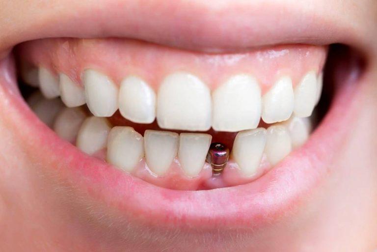 Những yếu tố tác động thời gian trồng răng Implant