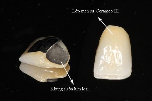 Cấu tạo của răng sứ kim loại