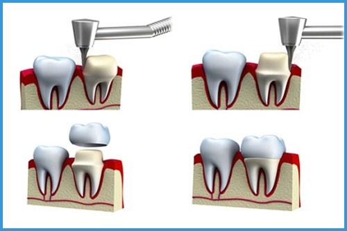 Quá trình trồng răng sứ kim loại