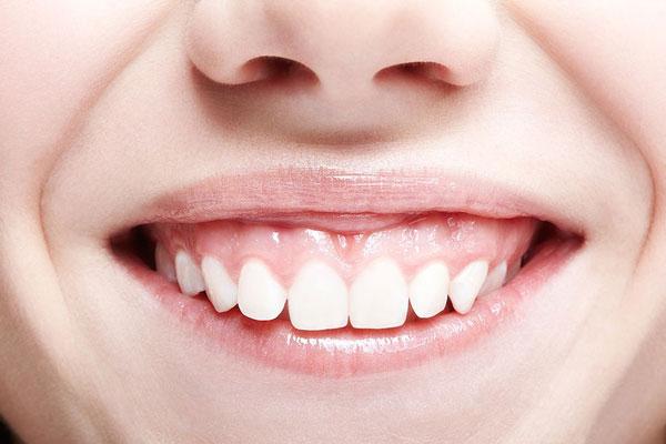 Cười hở lợi là gì? 4 cách điều trị cười hở lợi an toàn nhất hiện nay