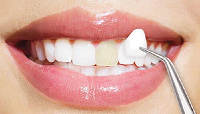 Dán sứ Veneer là gì? Ưu nhược điểm của dán răng mặt sứ Veneer