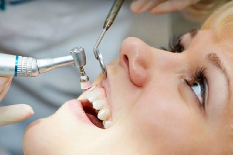 Tiến hành đánh bóng răng sau bước lấy cao răng