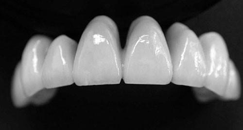Độ bền của răng sứ như thế nào ?