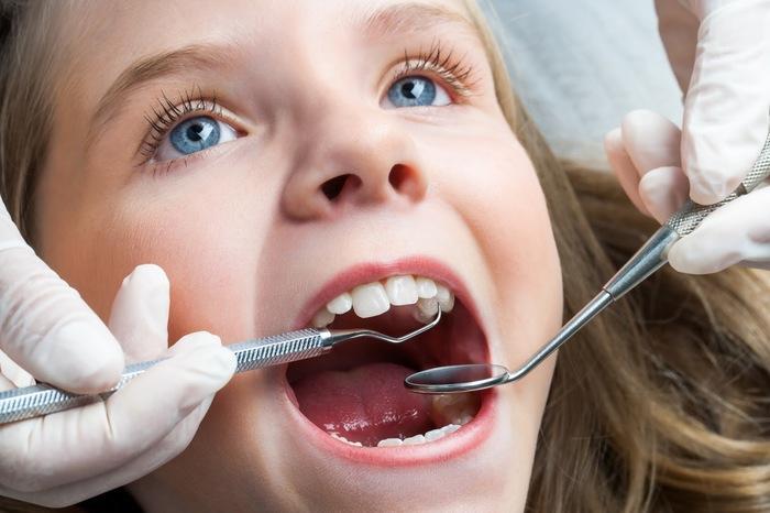 Với niềng răng trong suốt, độ tuổi thực hiện càng sớm kết quả sẽ càng thấy rõ nhanh chóng
