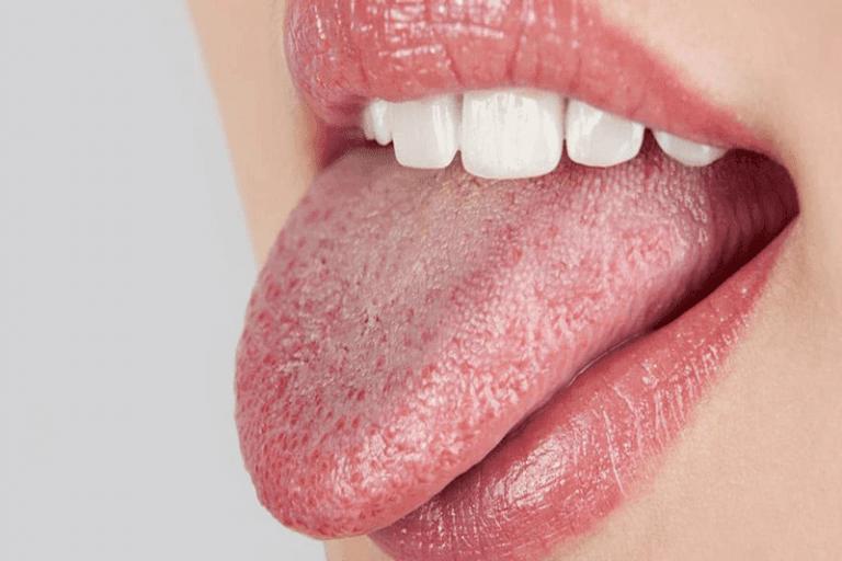 Hội chứng khô miệng cũng là một nguyên nhân có thể gây ra sâu răng