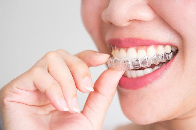 Invisalign – phương pháp niềng răng không mắc cài thẩm mỹ cao