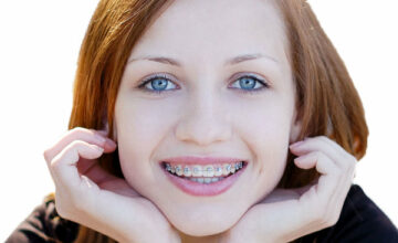 Khi nào là thời điểm tốt nhất để niềng răng?