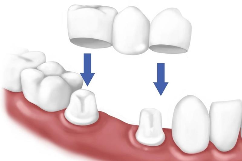 Làm cầu răng sứ – 7 thắc mắc thường gặp nhất