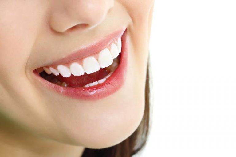 Bạn nên hạn chế cười to để tránh lộ nhược điểm về răng