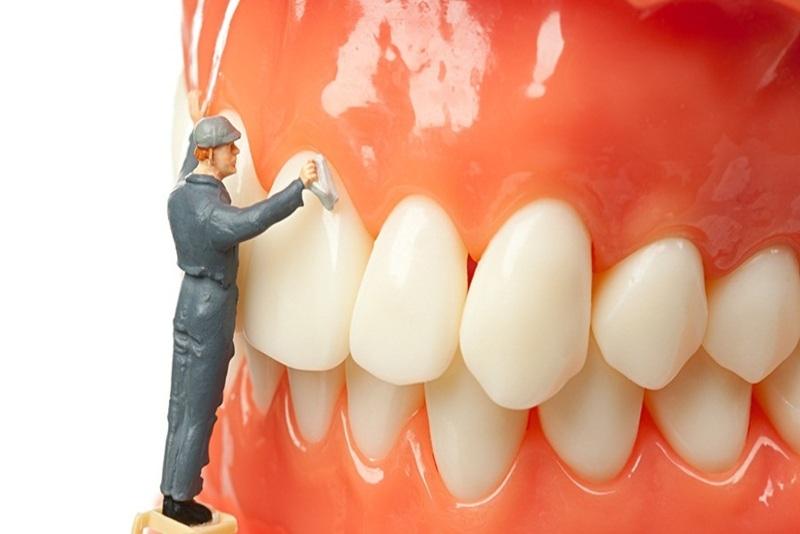 Lấy cao răng có tốt không? Có nên thực hiện lấy cao răng?
