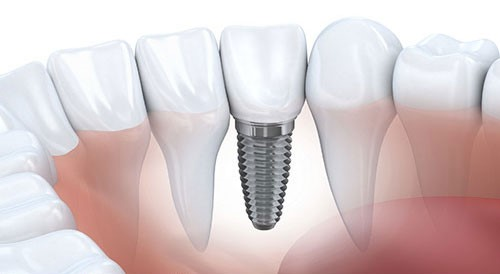 Lịch sử hình thành phương pháp cấy ghép răng Implant