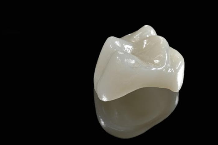 Mão bọc răng Empress
