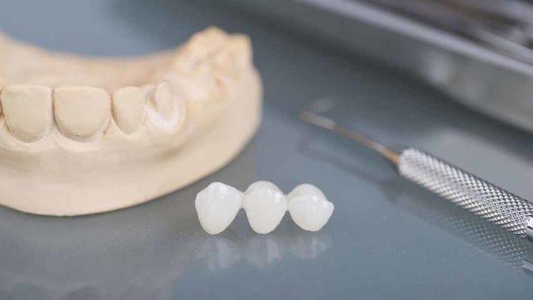 Bọc mão răng tạm thời bằng nhựa