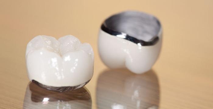 Hợp kim thường sẽ có tỷ lệ kim loại thuộc nhóm vàng và bạch kim dưới 25%