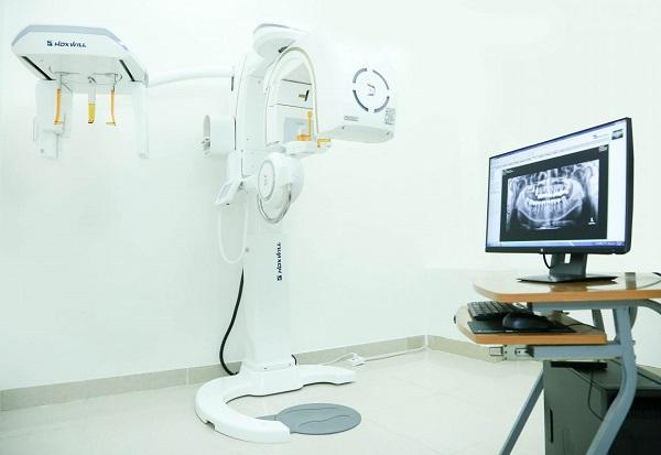 Máy chụp phim CT Cone Beam – Công nghệ mới trong thăm khám nha khoa
