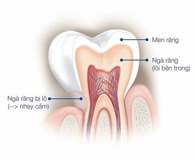 Men răng là gì? 5 cách khắc phục tình trạng men răng yếu hiệu quả