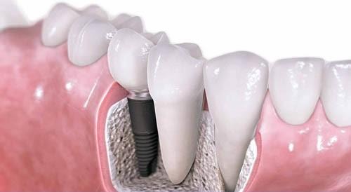 Nên ăn gì sau khi trồng răng Implant ?