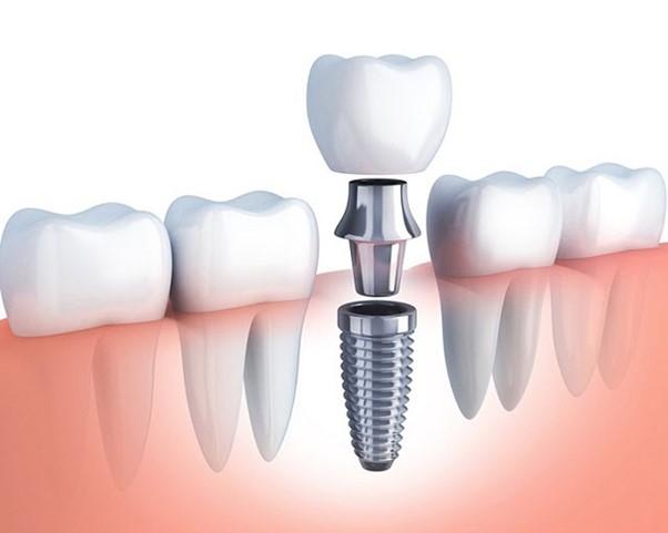 Nên lựa chọn trồng răng bắc cầu hơn hay trồng răng implant hơn?
