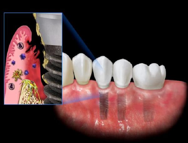 Nguyên nhân gây ra viêm quanh implant? Biện pháp phòng ngừa và cách điều trị