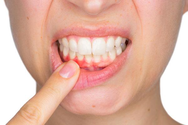 Nguyên nhân, triệu chứng và cách điều trị viêm nướu răng