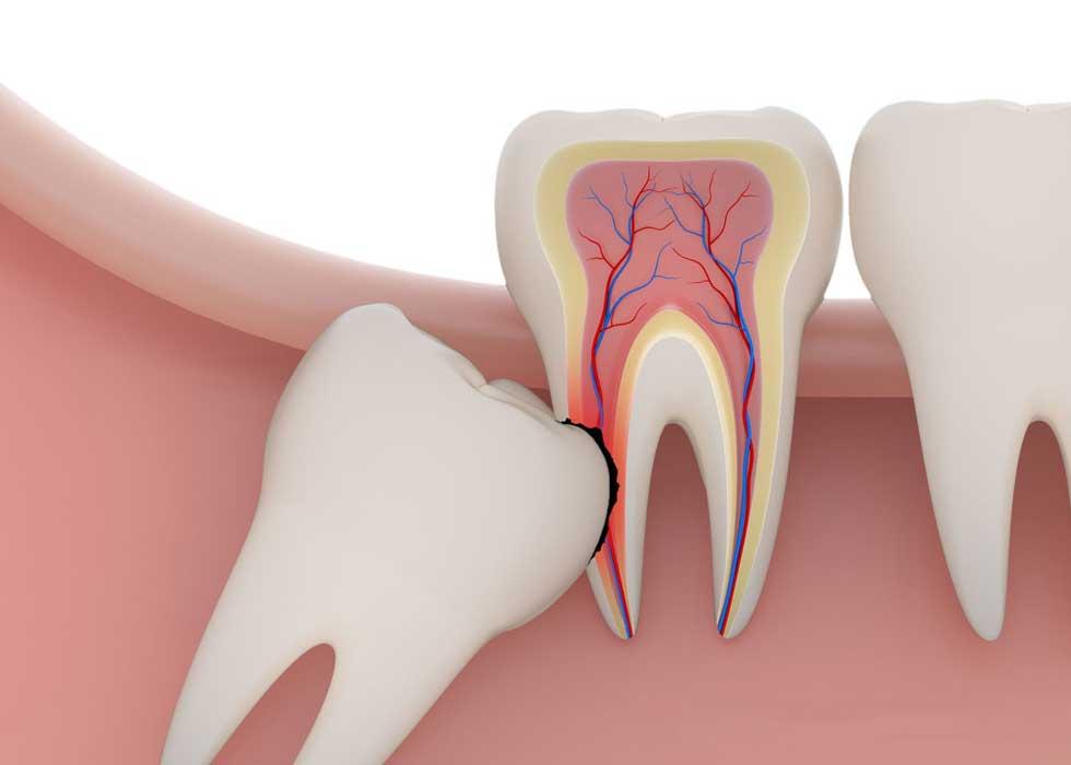 Răng khôn đâm ngang gây hỏng răng hàm bên cạnh