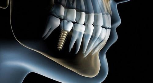 Những trường hợp nào không nên cấy ghép Implant?