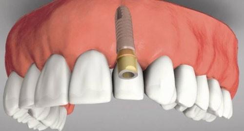 Những trường hợp nào nên trồng răng Implant