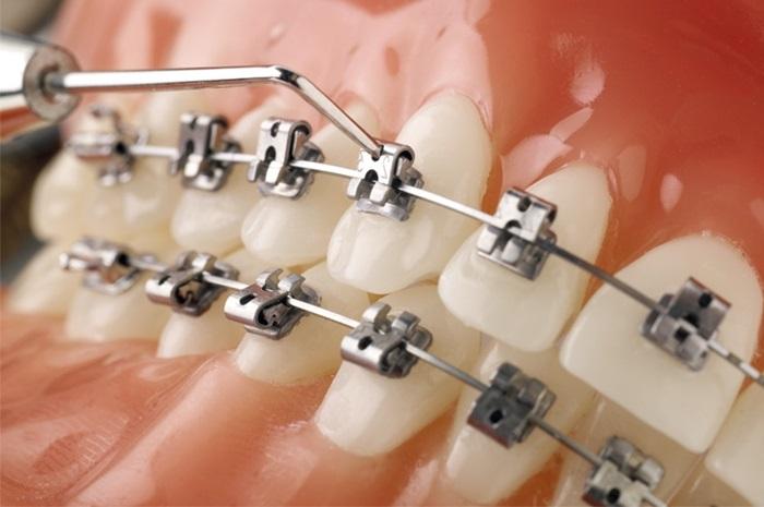 Nhược điểm của niềng răng dùng mắc cài tự buộc