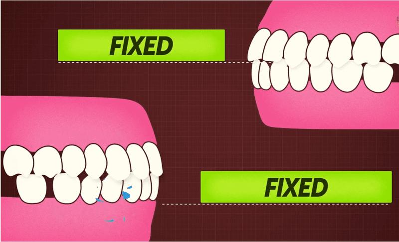 Niềng răng sẽ giúp bạn cải thiện rõ rệt chức năng nhai