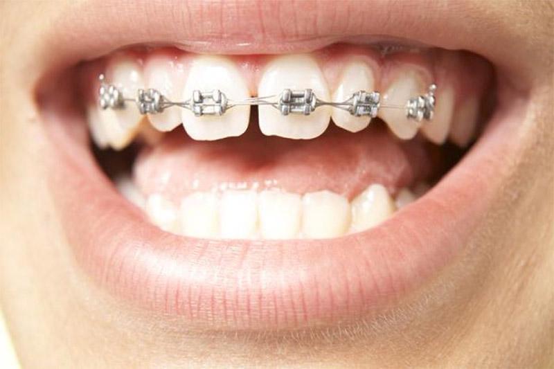 Ưu điểm của phương pháp niềng răng thẩm mỹ