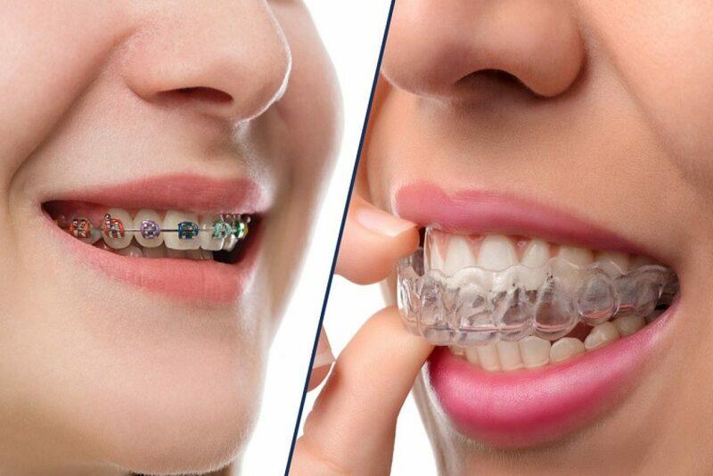 Niềng răng mắc cài và niềng răng trong suốt, nên chọn phương pháp nào?