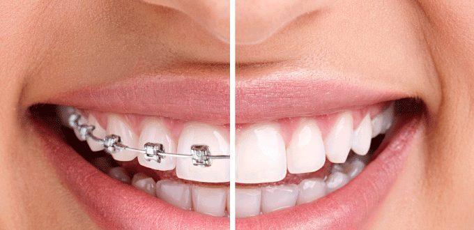Niềng răng mắc cài là gì ? Ưu - nhược điểm của các loại mắc cài trong niềng răng