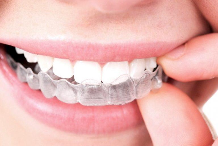Thời gian niềng răng bằng hàm trong suốt sẽ mất bao lâu?