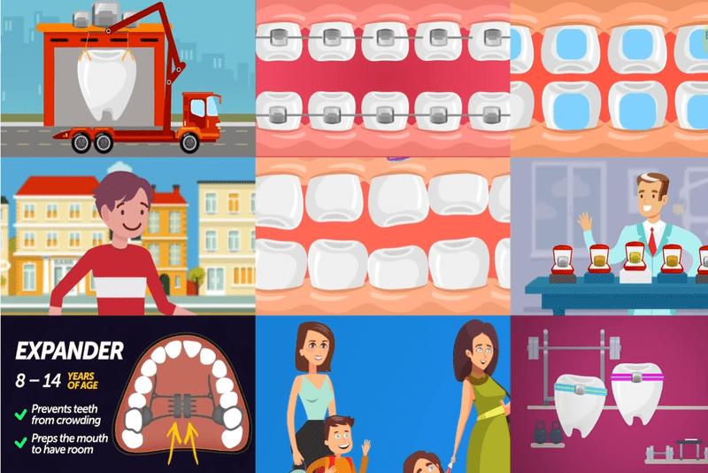 Quá trình niềng răng hô như thế nào? Niềng răng hô có tác dụng gì?