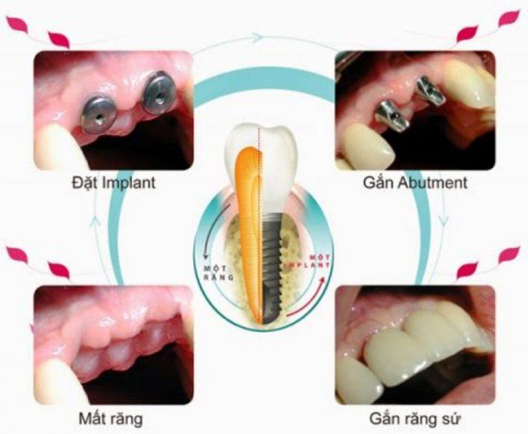Các bước thực hiện cấy và ghép Implant