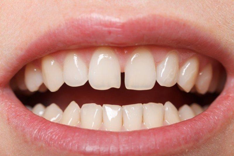 Răng bị thưa phải làm sao? Chữa trị răng thưa ở đâu uy tín?