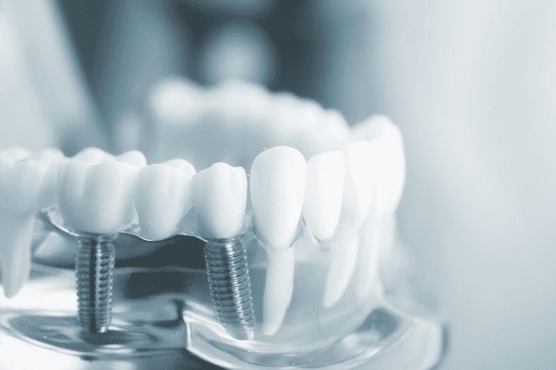 Răng hàm là gì? Những thắc mắc thường gặp khi trồng răng hàm