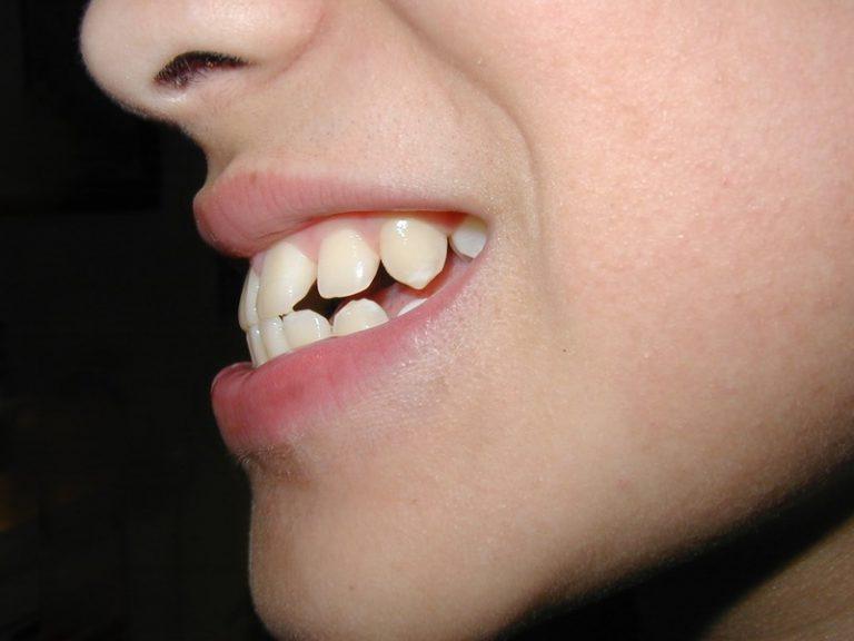 Giải pháp tự chỉnh răng hô tại nhà