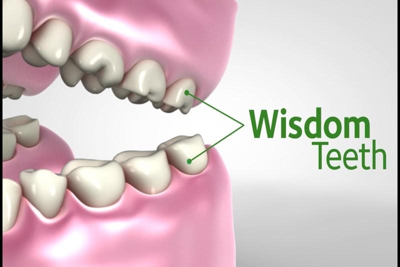 Răng khôn là răng số mấy? Có nên nhổ răng khôn hay để lại?