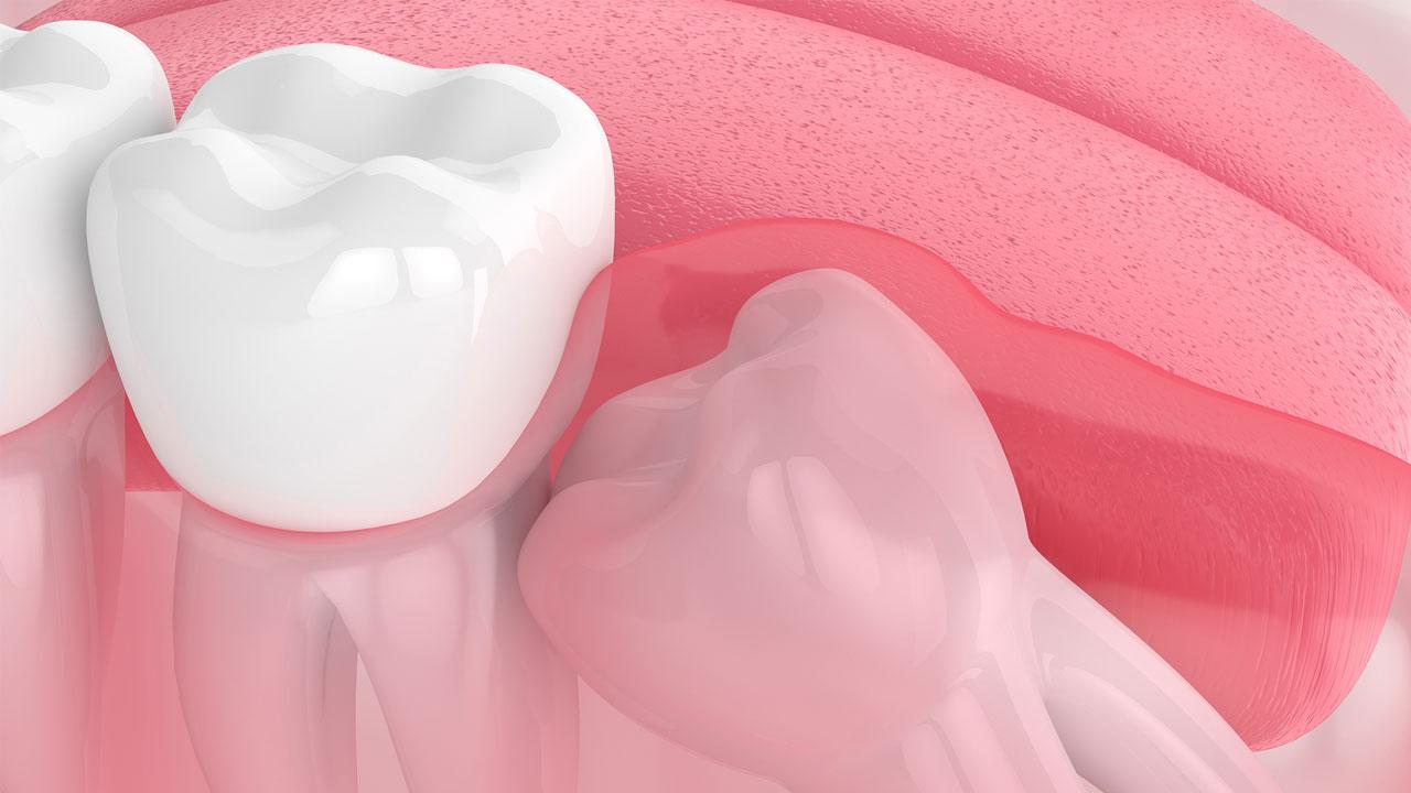 Răng khôn chèn ép dây thần kinh gây rối loạn cảm giác