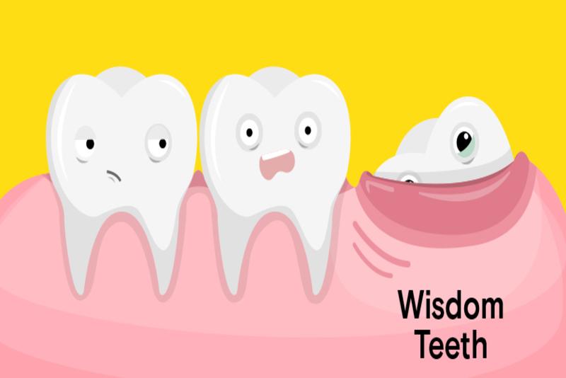 Răng khôn là răng số mấy?