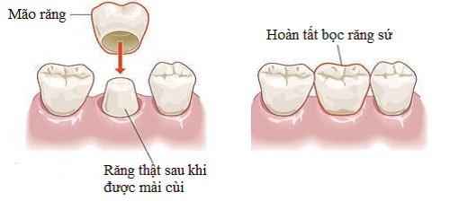 Cấu trúc bọc răng lệch