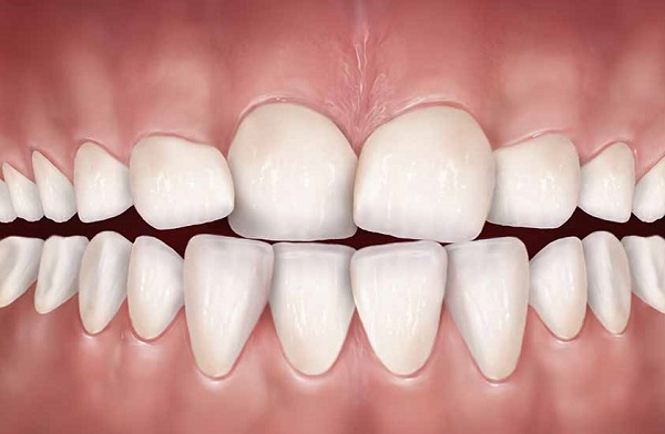 Răng mọc lệch có nên trồng răng sứ không?